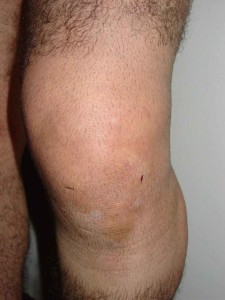 pauls knee